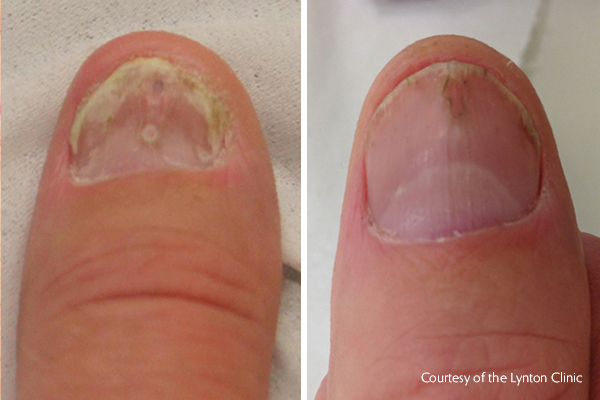 Fungal nail removal