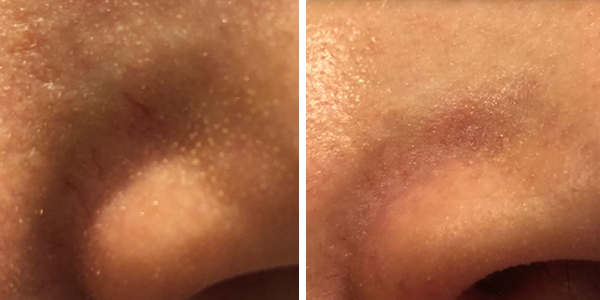 Red vein rosacea removal