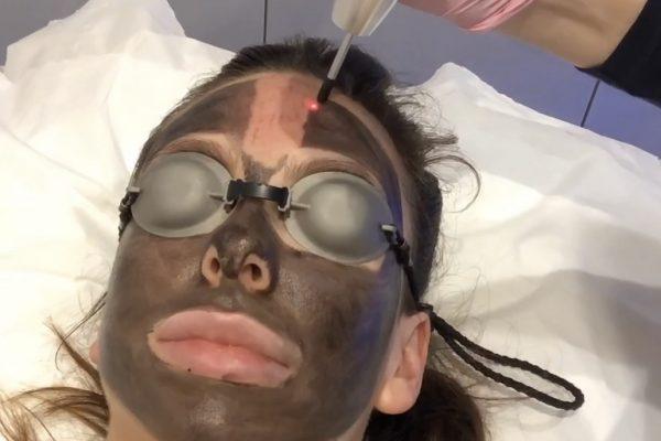the carbon facial