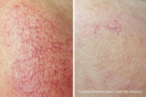 Rosacea Red Vein Removal